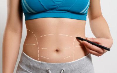 ¿Qué es una abdominoplastia?