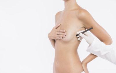 ¿Qué cuidados se deben seguir tras una intervención de reducción mamaria?