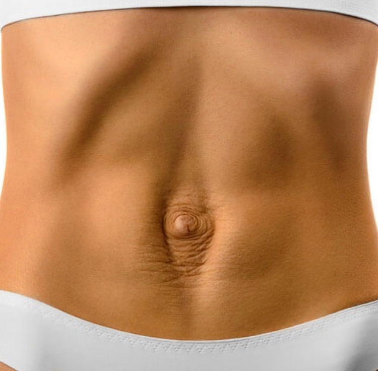 mini abdominoplastia