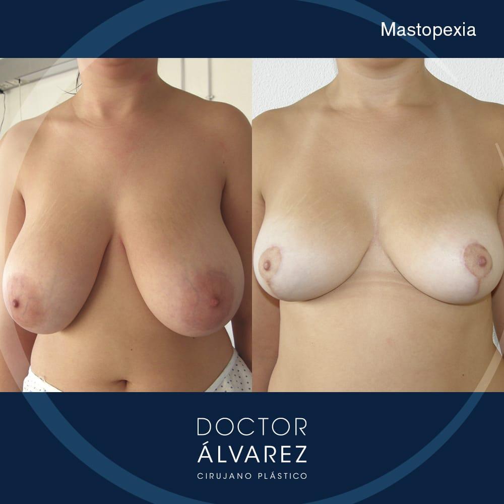 caso mastopexia antes y después de frente