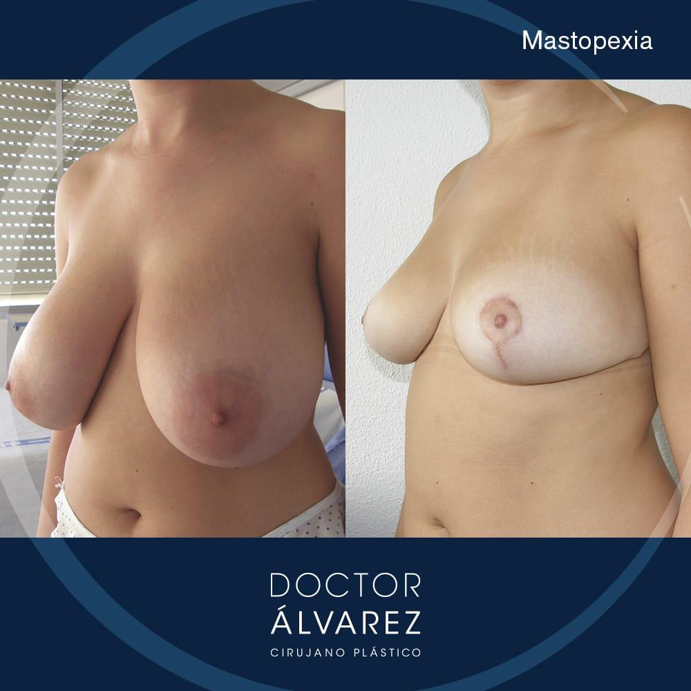 resultado con antes y después de una cirugía de mastopexia