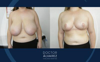 Caso de Reducción Mamaria con Hipertrofia Mamaria Virginal