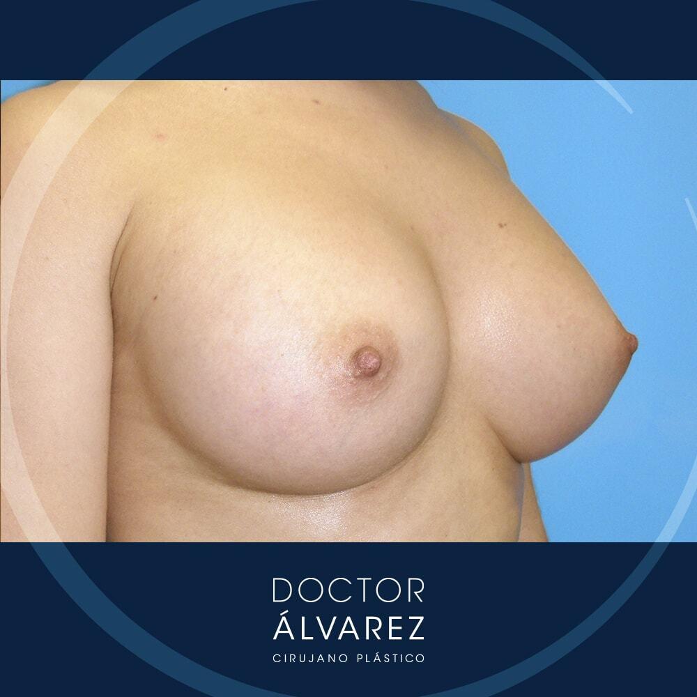 resultado aumento mamario